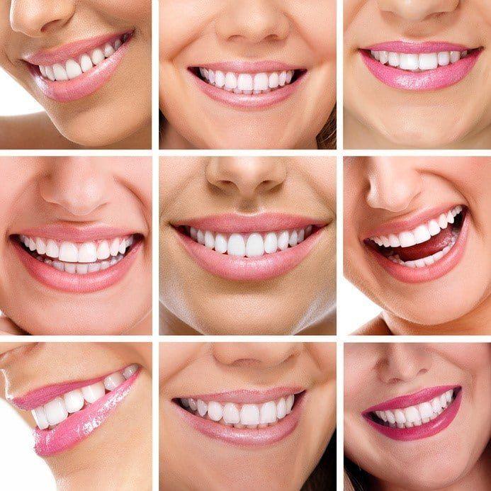 ¿Quieres unos dientes más blancos y luminosos?
