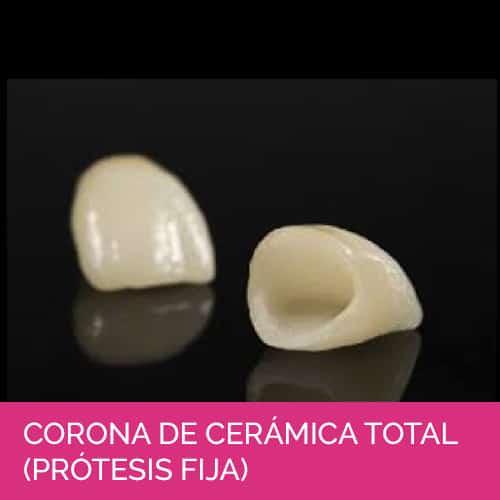 Corona de cerámica total (Prótesis fija)