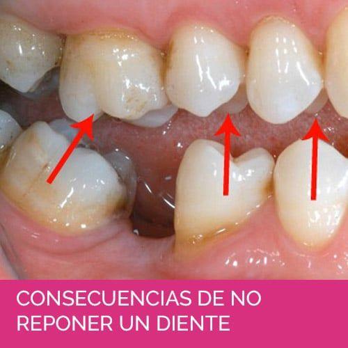 Consecuencias de no reponer un diente