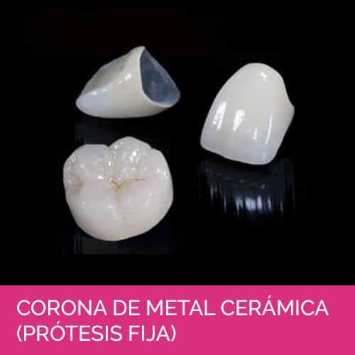 Corona de metal cerámica (Prótesis fija)