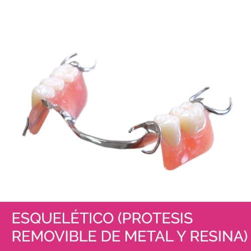 Esquelético (prótesis removible de metal y resina)