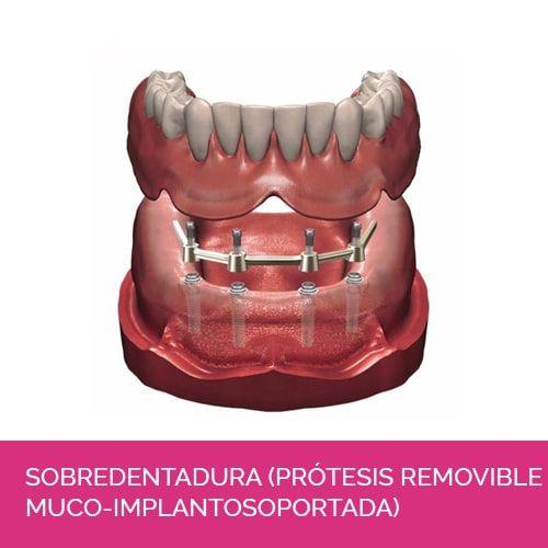 Sobredentadura (prótesis removible muco-implantosoportada)
