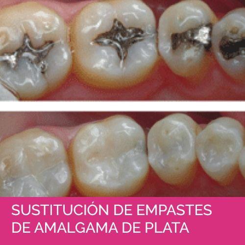 SUSTITUCIÓN DE EMPASTES DE AMALGAMA DE PLATA
