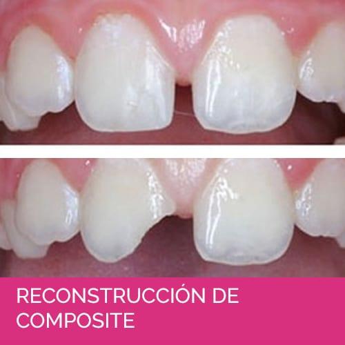 RECONSTRUCCIÓN DE COMPOSITE