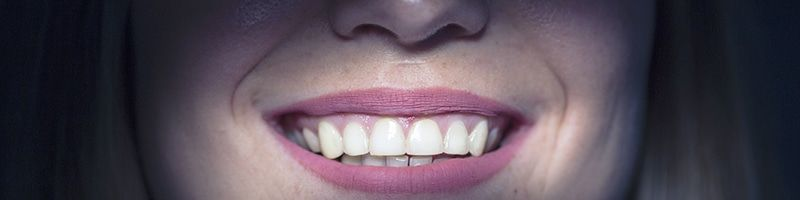 sonrisa blanca y saludable