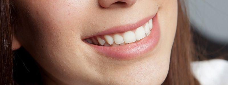 Las 5 mayores ventajas de la ortodoncia dental en adultos