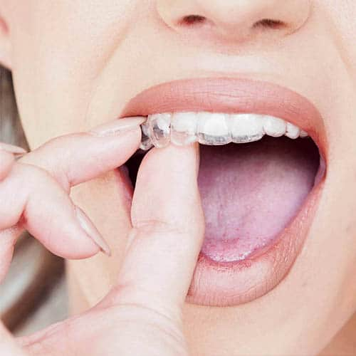 Invisalign | Clínica Dental Manosalbas