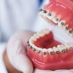 ¿Qué acción tienen los brackets sobre los dientes?