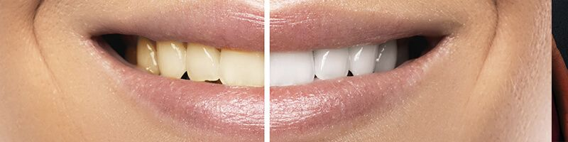 estetica dental sevilla