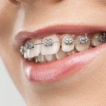 Fases de un tratamiento de ortodoncia