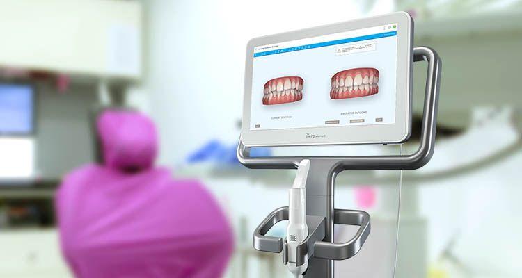 Escáner Intraoral | Clínica Dental Manosalbas
